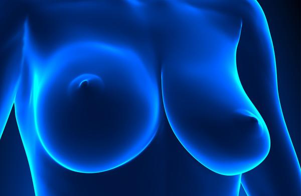 Asimetrías mamarias